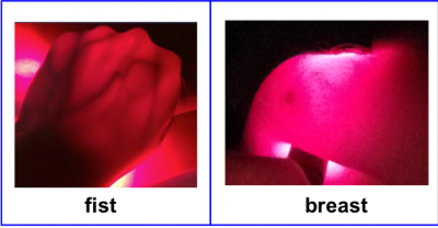 Red light shines through a fist and breast tissue.