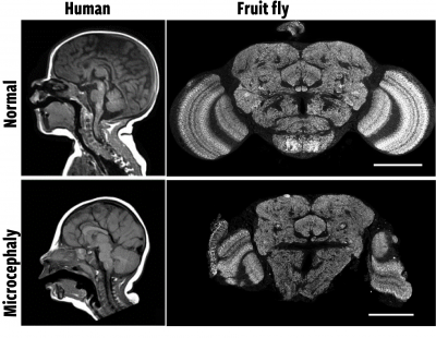 black and white images of brains